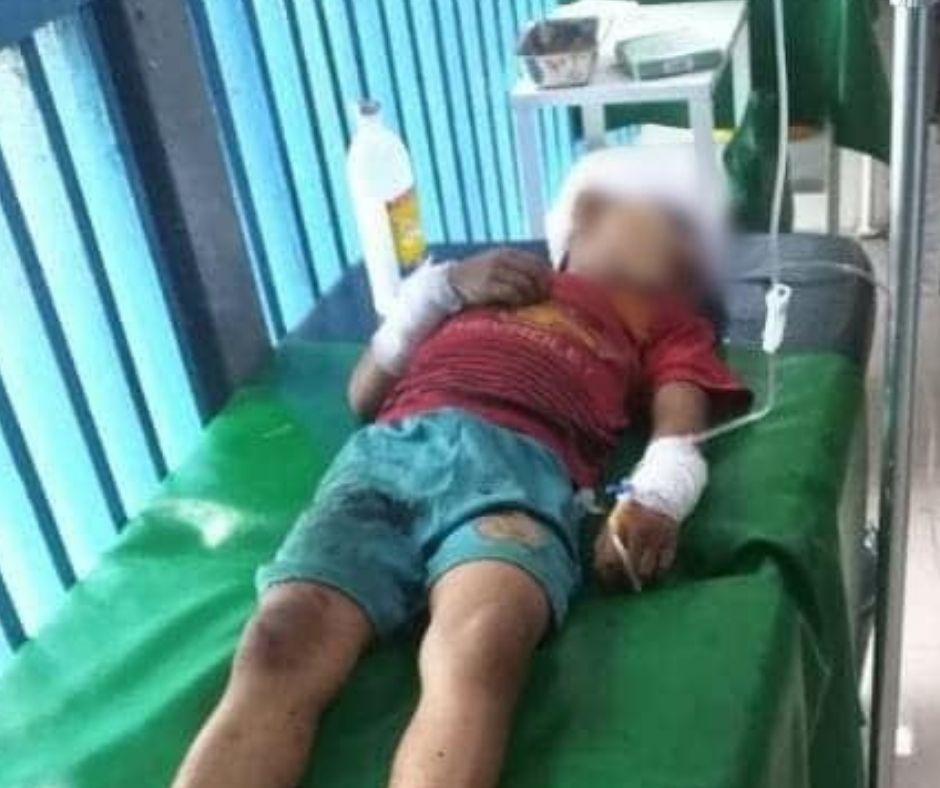 RPG shooting at Kho Ten Kutkai 6 child injury