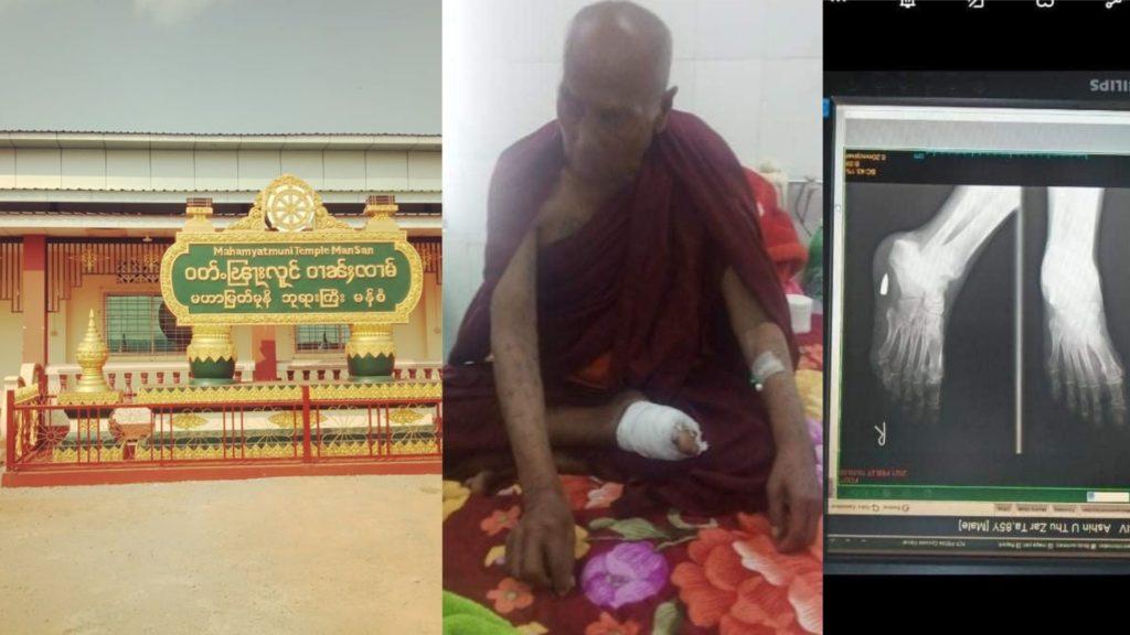 Buddhist monk shoot at leg at Numtu