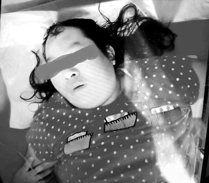 woman injure at Numtu fighting